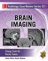 Radiology Case Review Series: Brain...