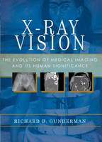 X-ray Vision: The Evolution of ...