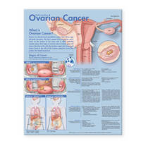 Understanding Ovarian Cancer...