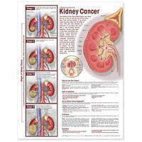 Understanding Kidney Cancer ...