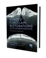 Bonded Porcelain Restorations in the...