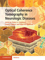 Optical Coherence Tomography in...
