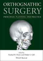 Orthognathic Surgery: Principles,...