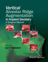 Vertical Augmentation of the Alveolar...