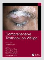 Comprehensive Textbook on Vitiligo