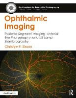 Ophthalmic Imaging: Posterior Segment...