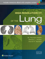 High-Resolution CT of the Lung