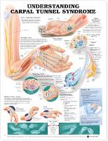 Understanding Carpal Tunnel Syndrome...