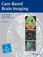Case Based Brain Imaging