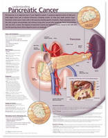 Understanding Pancreatic Cancer...