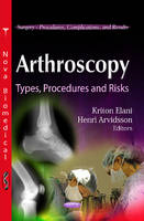 Arthroscopy: Types, Procedures & Risks