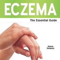 Eczema - The Essential Guide