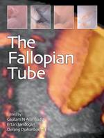 The Fallopian Tube
