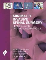 Minimally Invasive Spinal Surgery:...