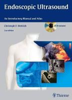 Endoscopic Ultrasound: An ...