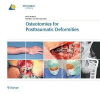 Osteotomies for Posttraumatic...
