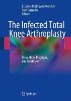 The Infected Total Knee Arthroplasty:...