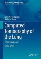 Computed Tomography of the Lung: A...
