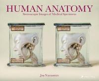 Human Anatomy: Stereoscopic Images of...