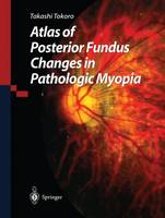 Atlas of Posterior Fundus Changes in...