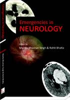 Emergencies in Neurology