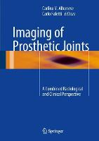 Imaging of Prosthetic Joints: A...