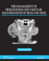 The Management of Haemangiomas and...