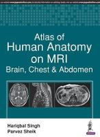 Atlas of Human Anatomy on MRI: Brain,...