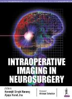 Intraoperative Imaging in Neurosurgery