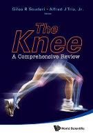 The Knee: A Comprehensive Review