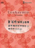 Leukaemia: An Overview