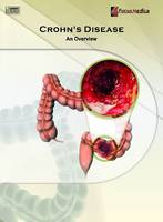 Crohn's Disease: An Overview