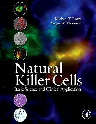 Natural Killer Cells: Basic Science and Clinical Application
