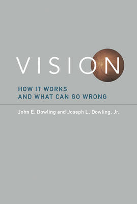 Vision: How It Works and What Can Go Wrong