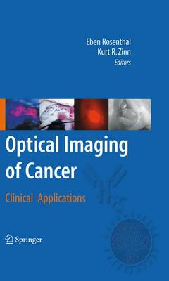 Optical Imaging of Cancer: Clinical Applications