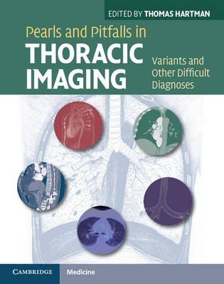 Pearls and Pitfalls in Thoracic Imaging: Variants and Other Difficult Diagnoses