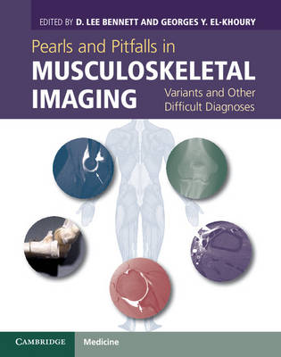 Pearls and Pitfalls in Musculoskeletal Imaging: Variants and Other Difficult Diagnoses