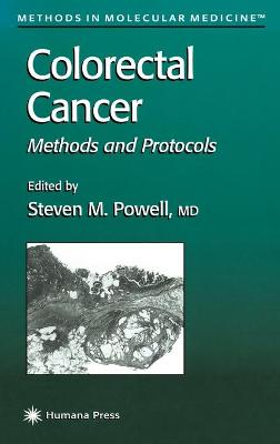 Colorectal Cancer: Methods and Protocols