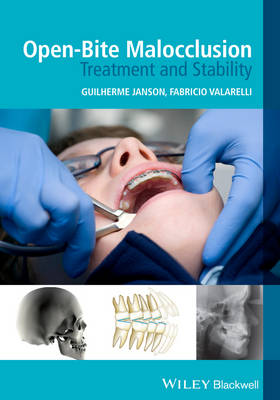 Open-Bite Malocclusion: Treatment and Stability