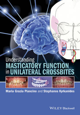 Understanding Masticatory Function in Unilateral Crossbites
