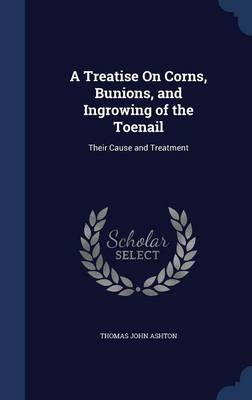 A Treatise on Corns, Bunions, and Ingrowing of the Toenail: Their Cause and Treatment