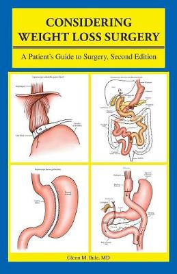 Considering Weight Loss Surgery: A Patient's Guide to Surgery