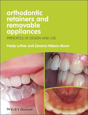 Orthodontic Retainers and Removable Appliances -  Principles of Design and Use