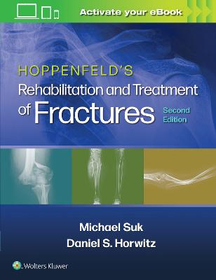 Hoppenfeld's Rehabilitation and Treatment of Fractures