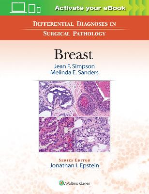 Differential Diagnoses in Surgical Pathology: Breast