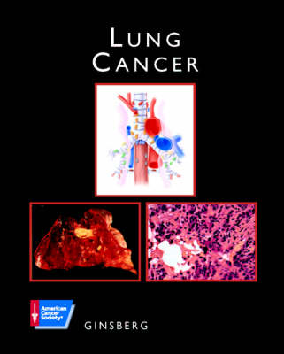 Lung Cancer: ACS Atlas of Clinical Oncology