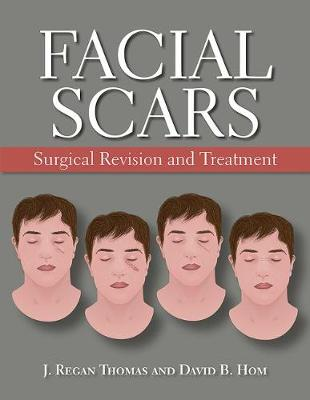 Facial Scars: Surgical Revision and Treatment