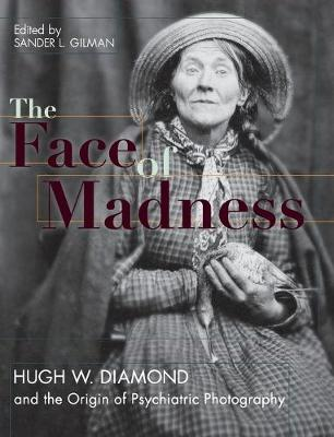 Face of Madness: Hugh W. Diamond and the Origin of Psychiatric Photography