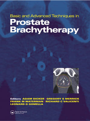 Basic and Advanced Techniques in Prostate Brachytherapy