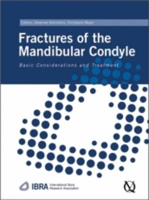 Fractures of the Mandibular Condyle: Basic Considerations and Treatments
